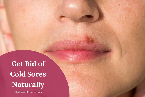 Medicine for cold sores on lips