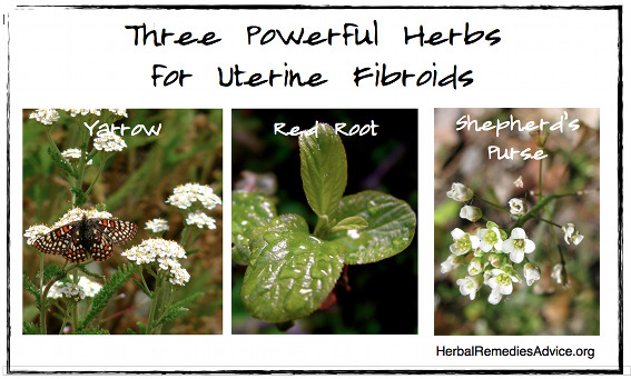 Natural Remedies for Fibroids