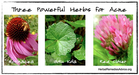 Herbs for Acne